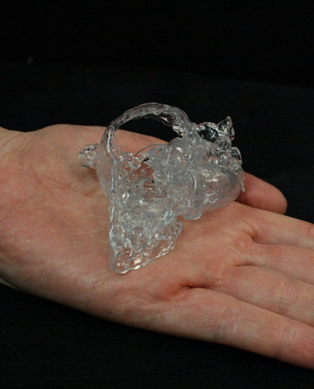 Materialise发布针对医院的3D打印解决方案:Mimics Care Suite